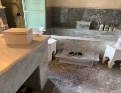 لبنان اليوم - مرض نادر يحرم رجلاً من الاستحمام لأكثر من 40 عاماً